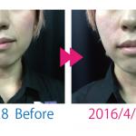 【写真有】出張で「フェイシャル整体」Before/After
