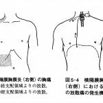 腸が原因の首こり肩こり
