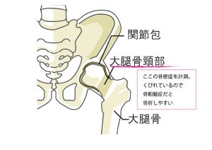 大腿骨頸部は骨折しやすい