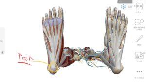 歩くと踵に痛みや異物感