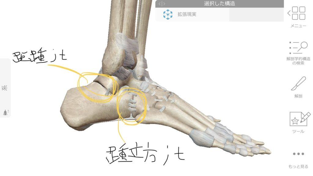 踵の痛みは関節のズレのこともある