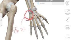 手首の小指側の痛み