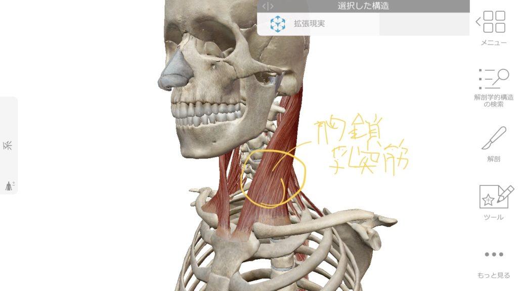 胸鎖乳突筋による目のぼやけ、目の奥の痛み