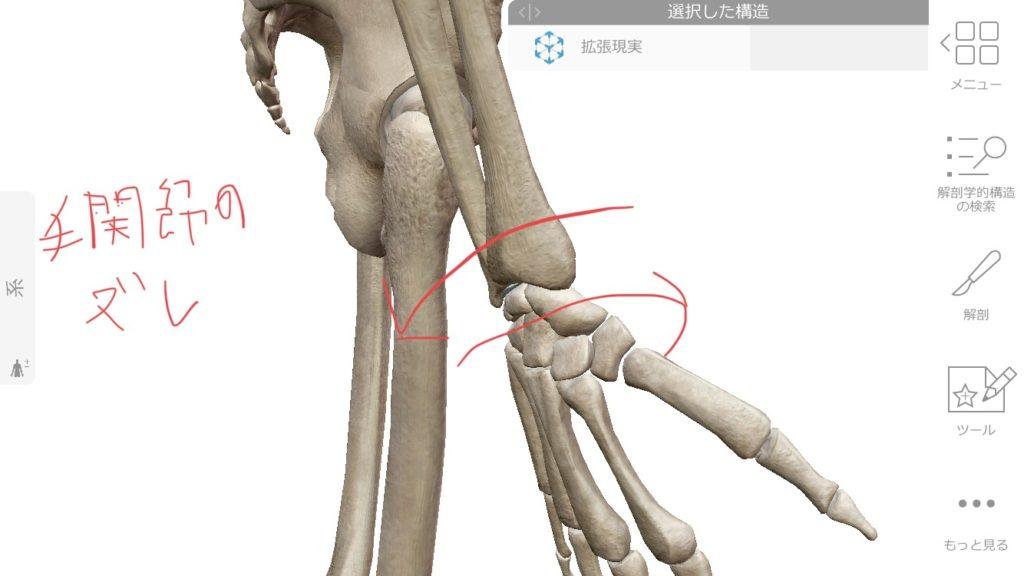手首のズレによる痛み