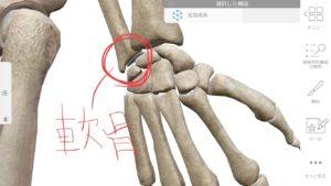 手首の軟骨損傷