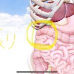 右上腹部の張りと右腰の張りの原因は