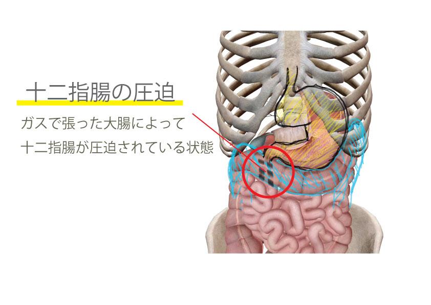 大腸がガスで張ったことによる十二指腸の圧迫
