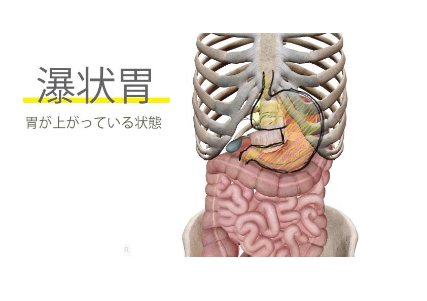 瀑状胃による肩こり