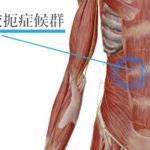 右上腹部の腹痛の原因が神経のこともある